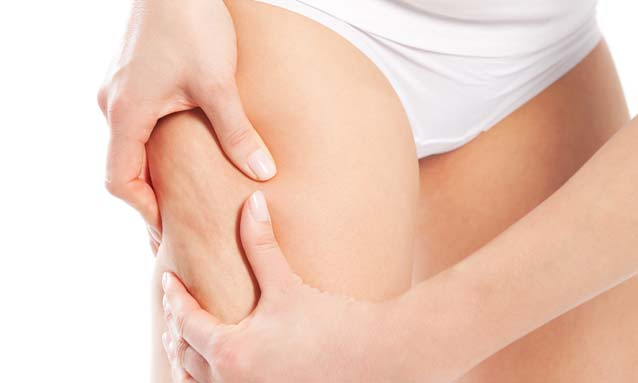 Does Cellulite go away with Weight Loss?