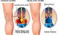 Varicose and Spider Veins: The Difference